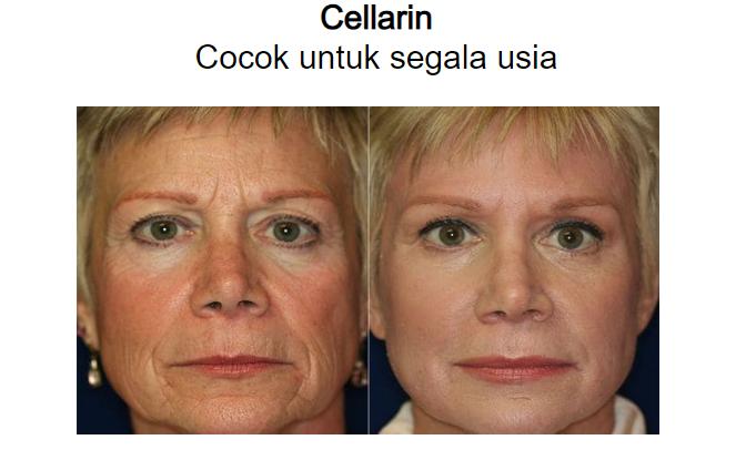 Cellarin